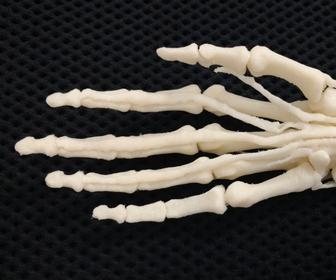 Military hospitals adopt 3D printers to create custom prosthetic hands, arms and legs